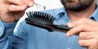 10 Причин выпадения волос у мужчин