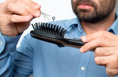 10 Причин випадіння волосся у чоловіків