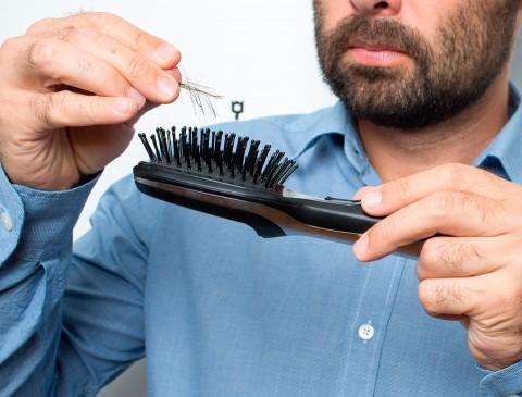 10 Причин выпадения волос у мужчин>