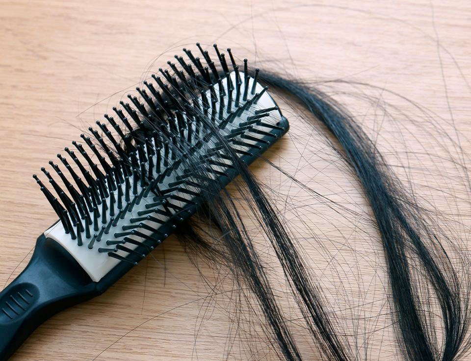 5 удивительных причин выпадения волос у женщин и как это исправить